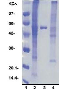 Amintra Cobalt Rapid Flow Resin.jpg